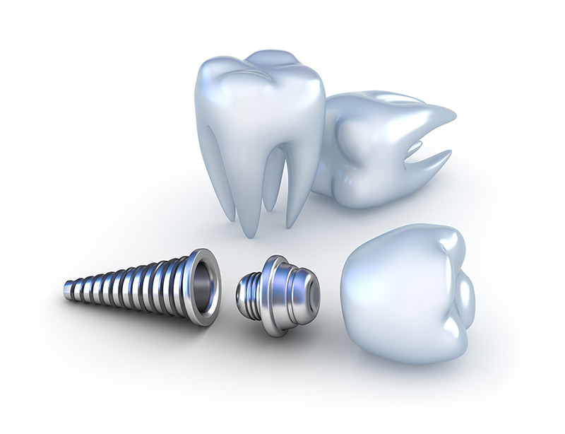 Our titanium products are ideal for manufacturing dental implants